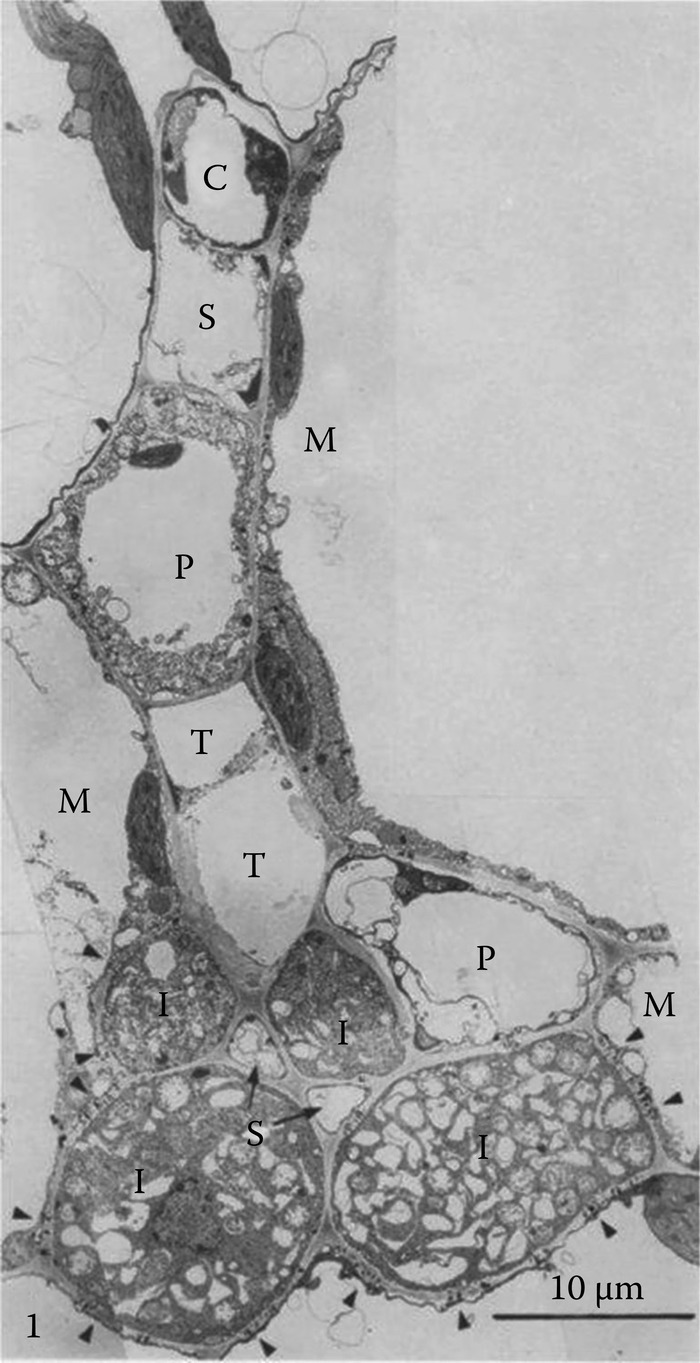 Transverse section through a minor vein of