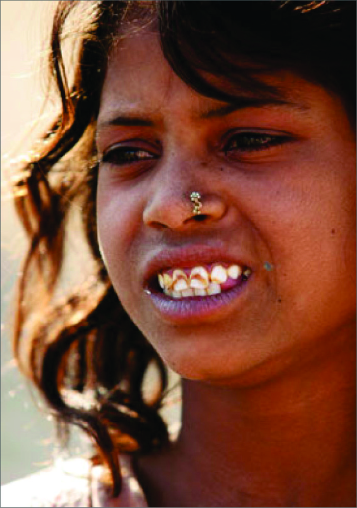 A girl from Garhtipli village in Dhar district in Madhya Pradesh suffering from dental fluorosis. (From UNICEF, Photo essay, UNICEF/India/2006/Ruhani kaur, fluorosis-mitigating the scourge,